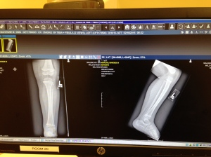 One healthy, healed leg.