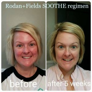 Soothe B&A